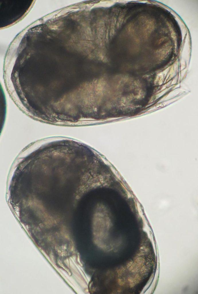 Oeufs-puce-grossis-au-microscope