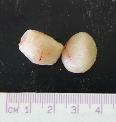 Deux-calculs-urinaires-de-2-centimetres